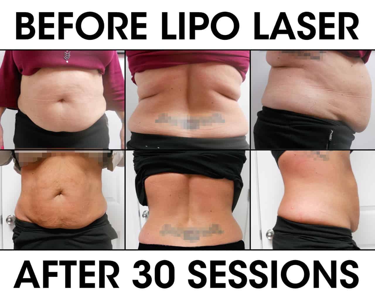 Lipo Laser Weight Loss Liberation